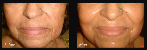 Skin before and after Micro-needling treatment